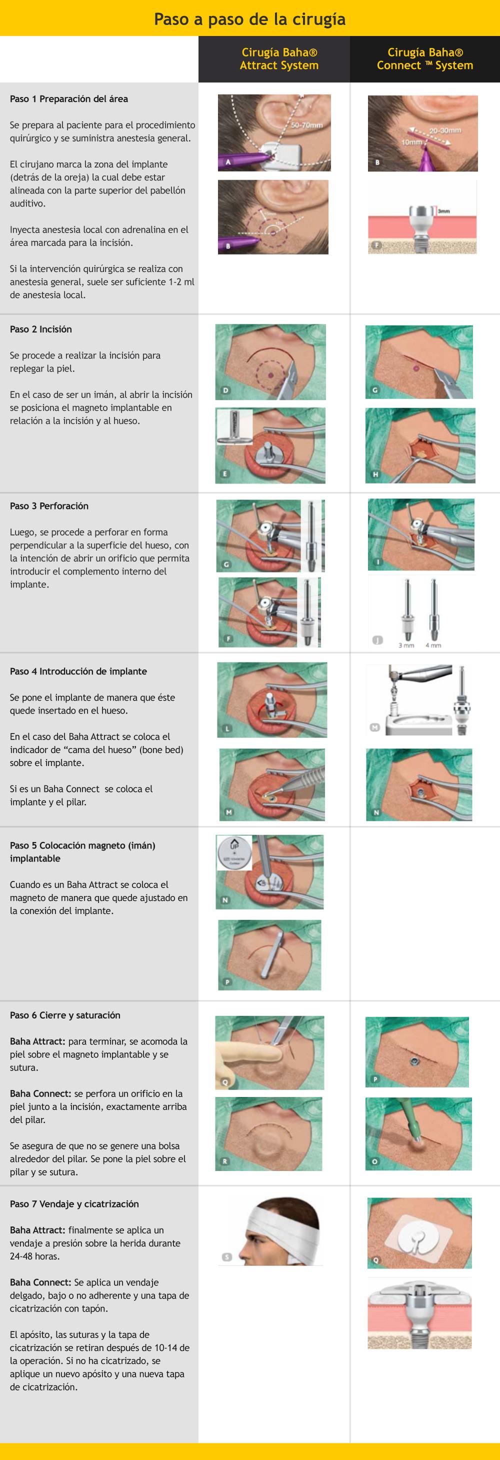 Paso a paso de una cirugía de un implante auditivo de conducción ósea
