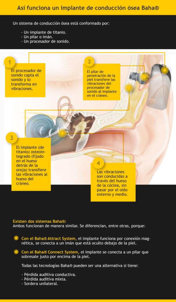 Tecnología de implantes Cochlear