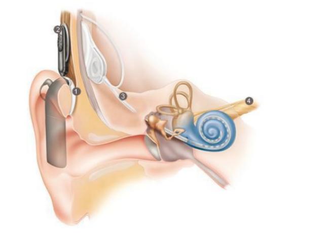 implante-como-funciona