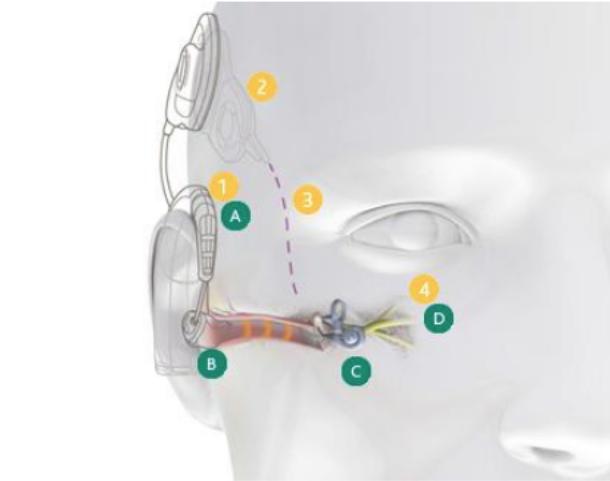 implantes-electroacusticos