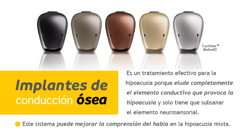 implantes-conduccion-osea