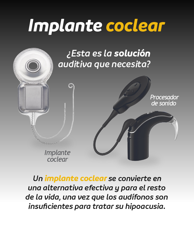 implante-coclear