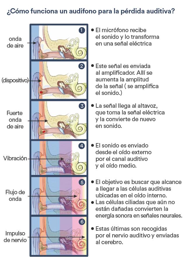 ¿Cómo se escucha con un audífono para la hipoacusia