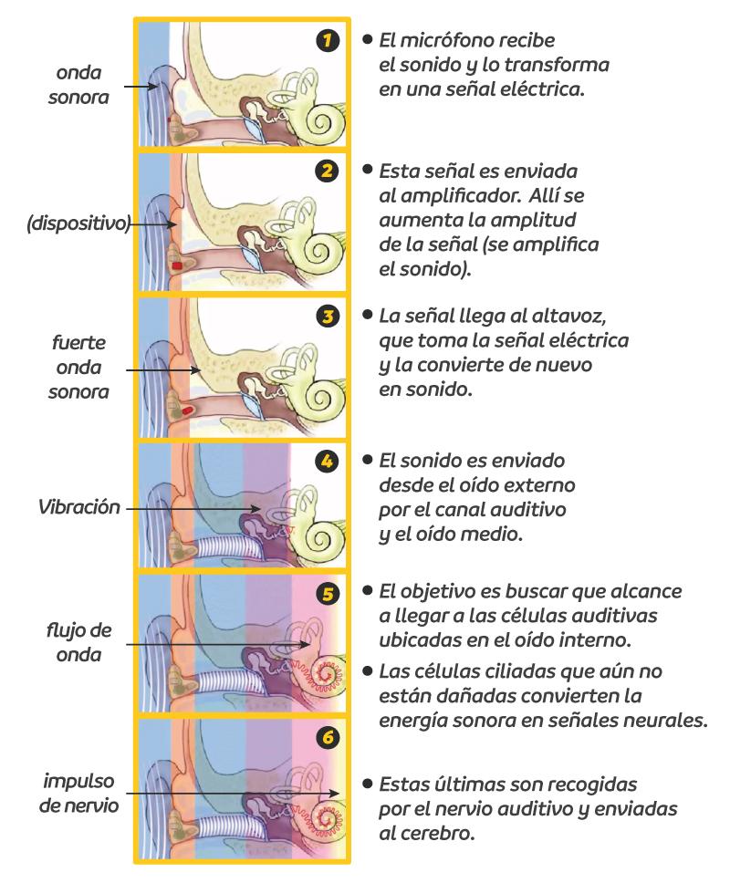 Cómo funciona un audífono para pérdida auditiva