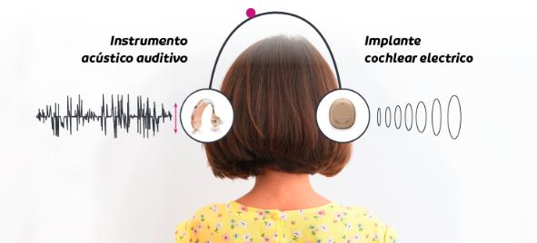 Descubra aquí que es la audición Bimodal