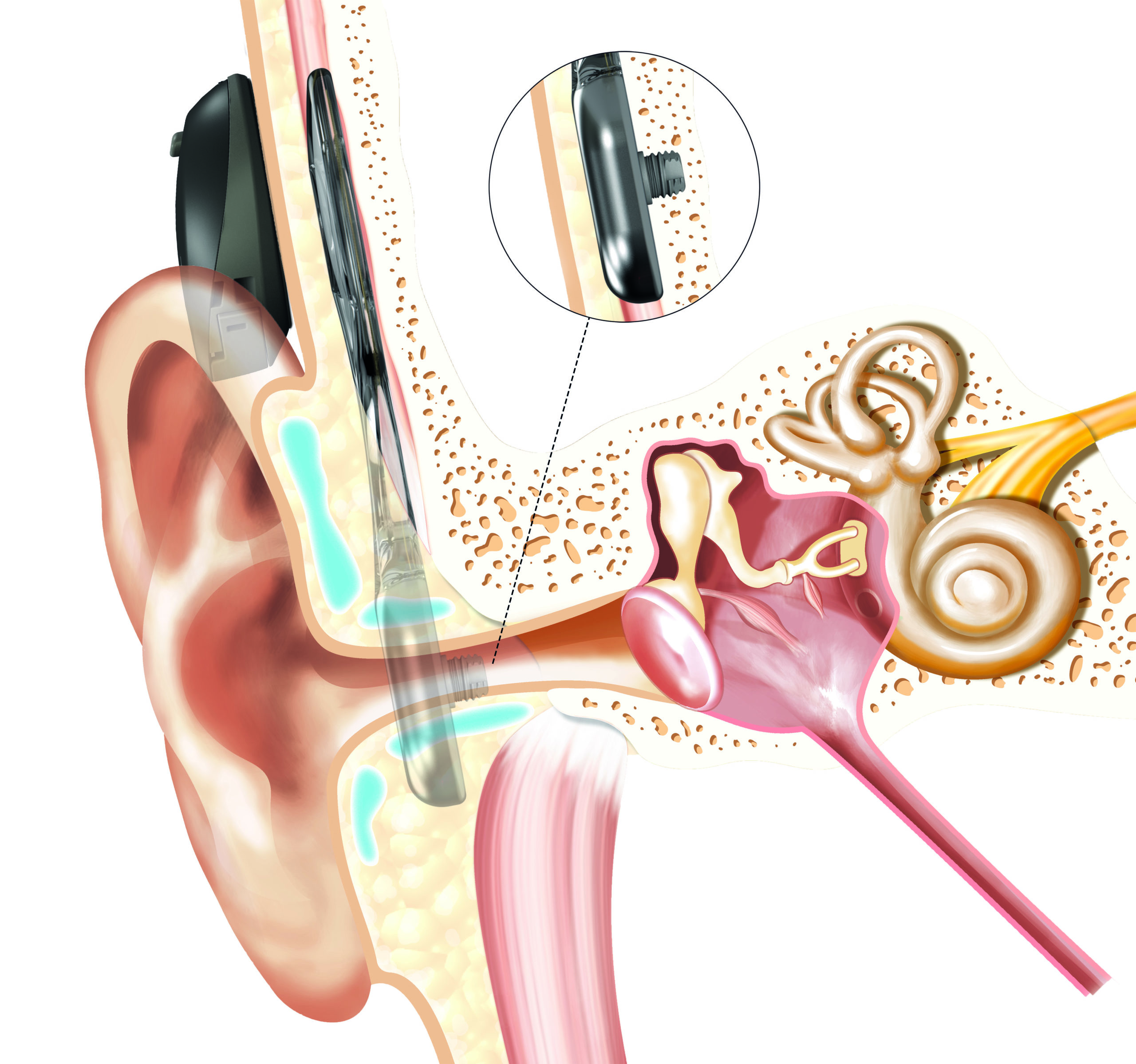 Implante de conducción ósea: Osia®
