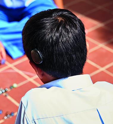 Rehabilitación cochlear