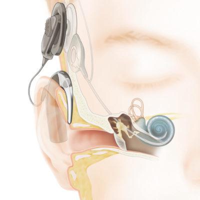 audicion_con_un_implante_coclear