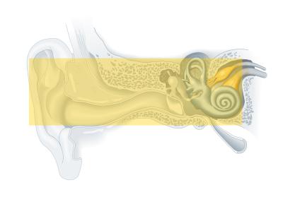 Tipos de tratamientos de pérdida auditiva